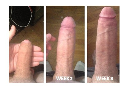 phalogenics before and after photo
