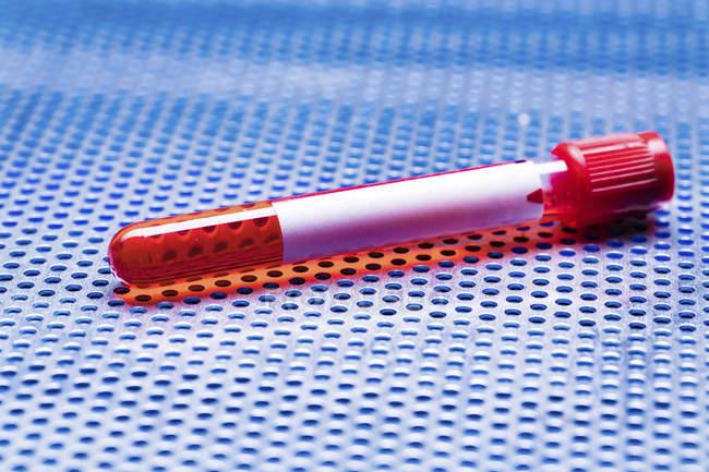 Herpes Blood Tests